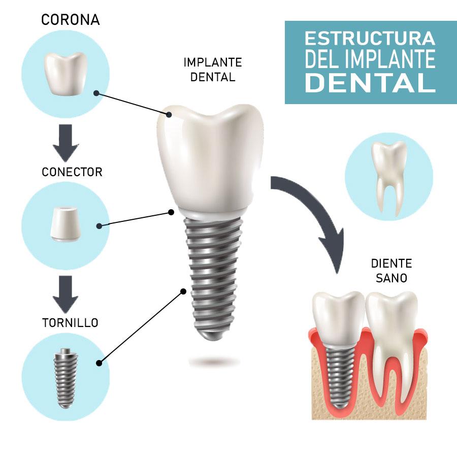 Partes implante dental